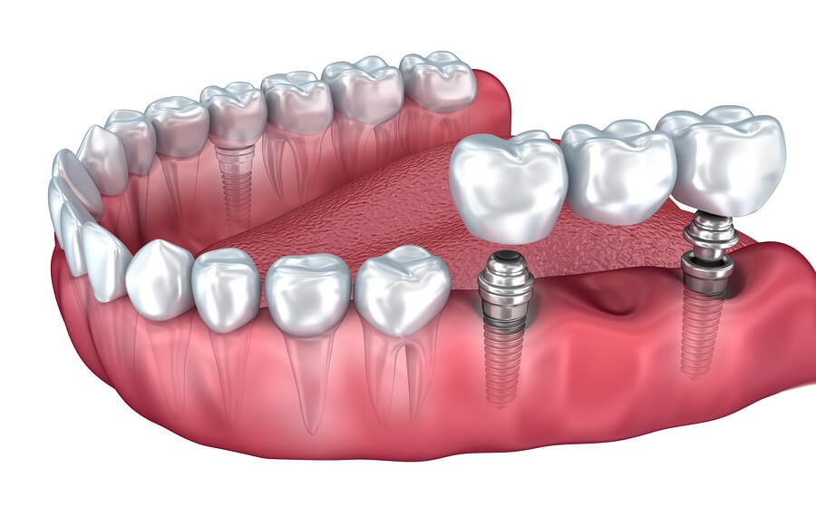 Multiple Teeth Implants – Old Mill Dental