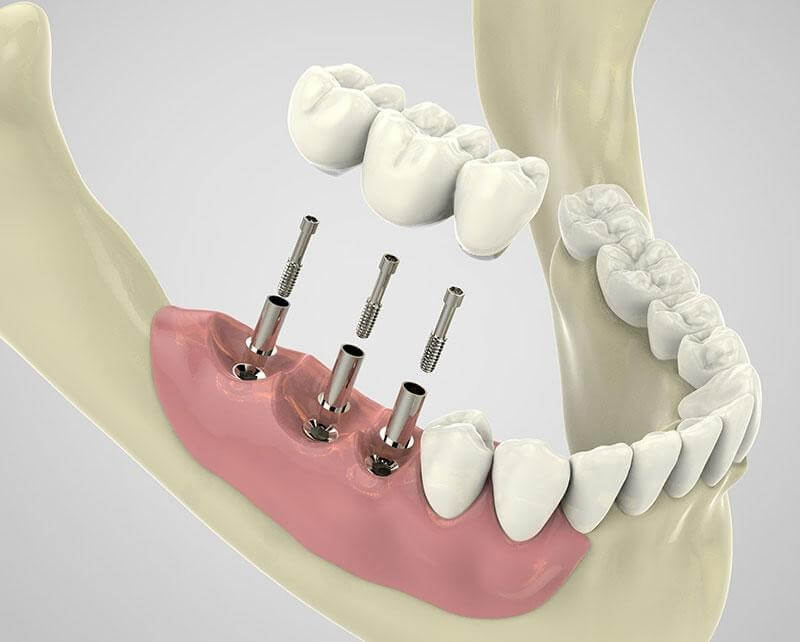 Dental Implants Mandurah | Gentle Dentists | Platinum Smile Dental Centre